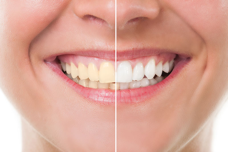 Teeth Whitening - Aurora and West Chicago Dental Care, Aurora Dentist
